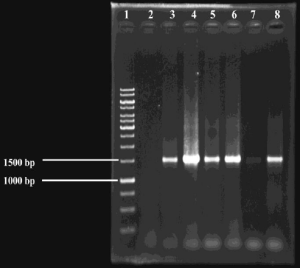 Agarose gel electrophoresis after 16S rDNA amplification
