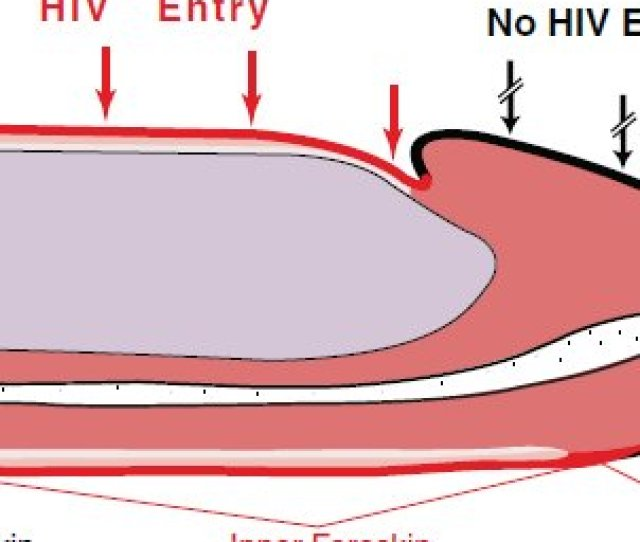 The Penis And Possible Hiv Entry Points