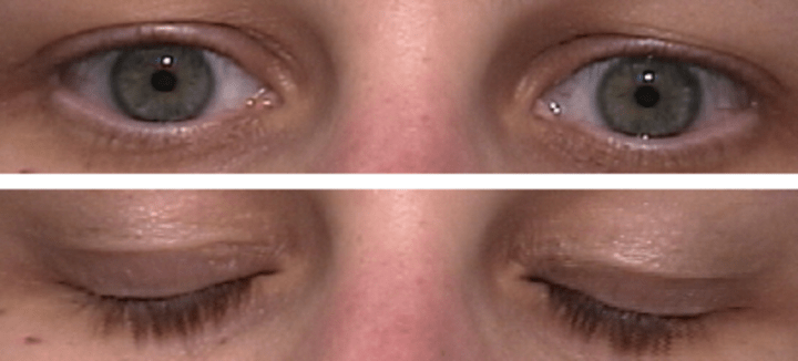 6 Magic Eye Exercises: To Help Your Vision