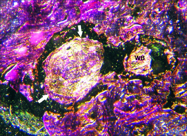 A Photomicrograph Showing The Old Bone Tissue Ob