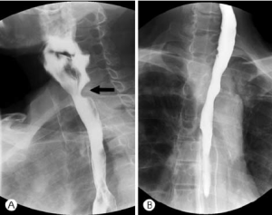 Barium swallow shows ( A ) stenosis at level of upper