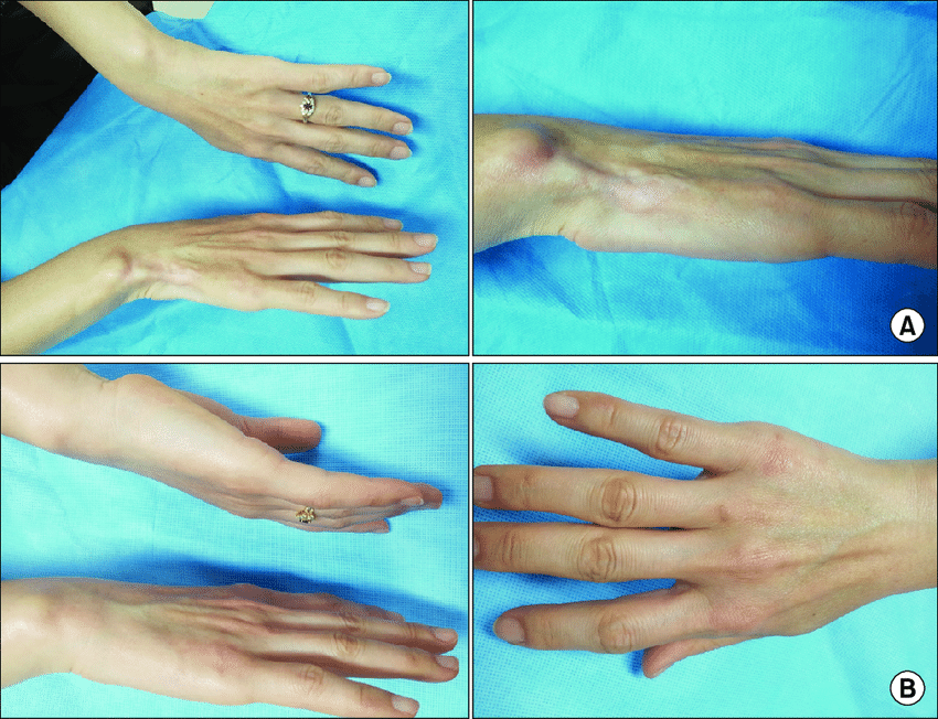 Fat Atrophy After Steroid Injection