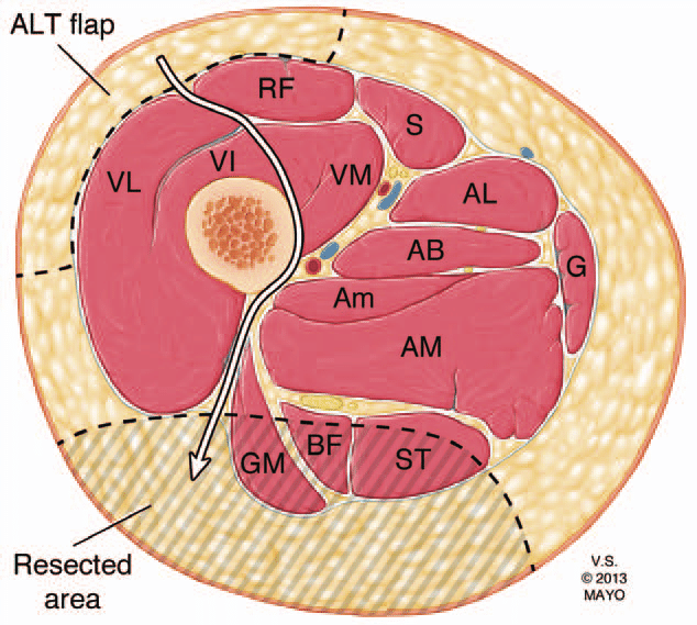 an axial illustration of the proximal thigh demonstrating ...