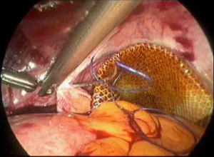 Reperitonealisation after laparoscopic rectocele mesh repair | Download Scientific Diagram