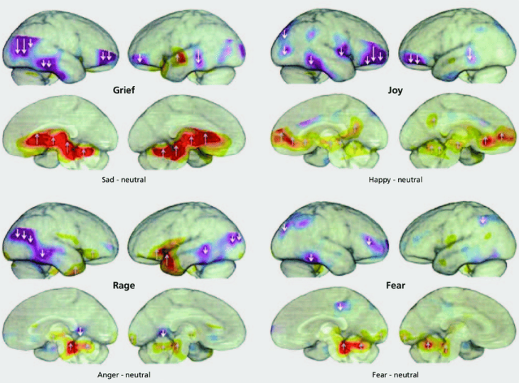 A summary of human brain arousals and inhibitions in humans experiencing four basic emotions (from autobiographical memory): Sadness (PANIC/GRIEF), Happiness (PLAY/JOY), anger (RAGE) and anxiety (FEAR) during positron emissions tomography (PET) scanning. Data are summarized in finer detail by Damasio et al. 25 Distinct subcortical brain regions exhibit abundant arousals (reds and yellows) during each of these emotions, while there are abundant cortical inhibitions (reduced blood flow, coded as blues and purples) present in many cortical areas. To facilitate reading, upward arrows indicate increased brain arousals and downward arrows indicate reduced brain regional arousals. (The statistical