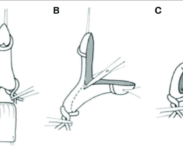 Girth Reduction Clitoroplasty Once The Clitoris Has Been Degloved A Vessel Loops Are Placed At The Base Of Each Corpora In Order To Maintain Hemostasis