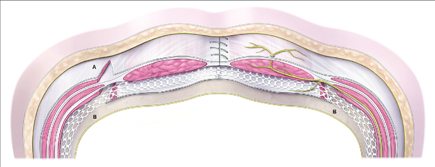 Schematic Drawing Of Endoscopic Component Separation