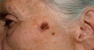 lesões de pele