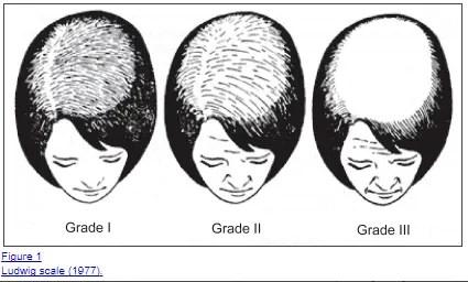 male pattern baldness in women