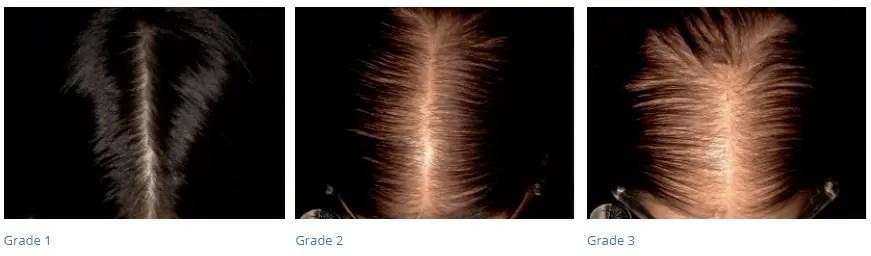 female pattern hair loss in women