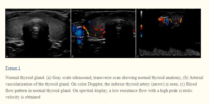 what your thyroid gland looks like during ultrasound testing