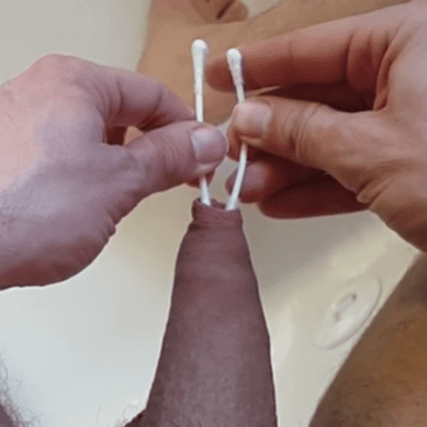 Curando la fimosis sin circuncisión
