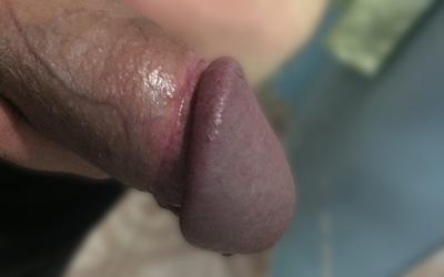 Estilos de circuncisión - Estilo bajo