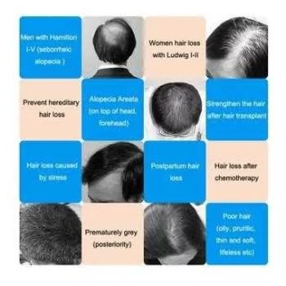 10 Best Hair Growth Products For Men & Women Works Quickly 2