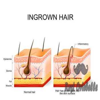 Ingrown hair after having vector art illustration how long does an ingrown hair Cyst last