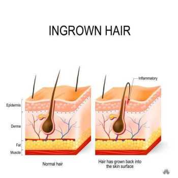 Ingrown hair after having vector art illustration Tweeze Ingrown Hair