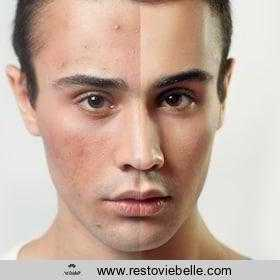 best acne treatments for men