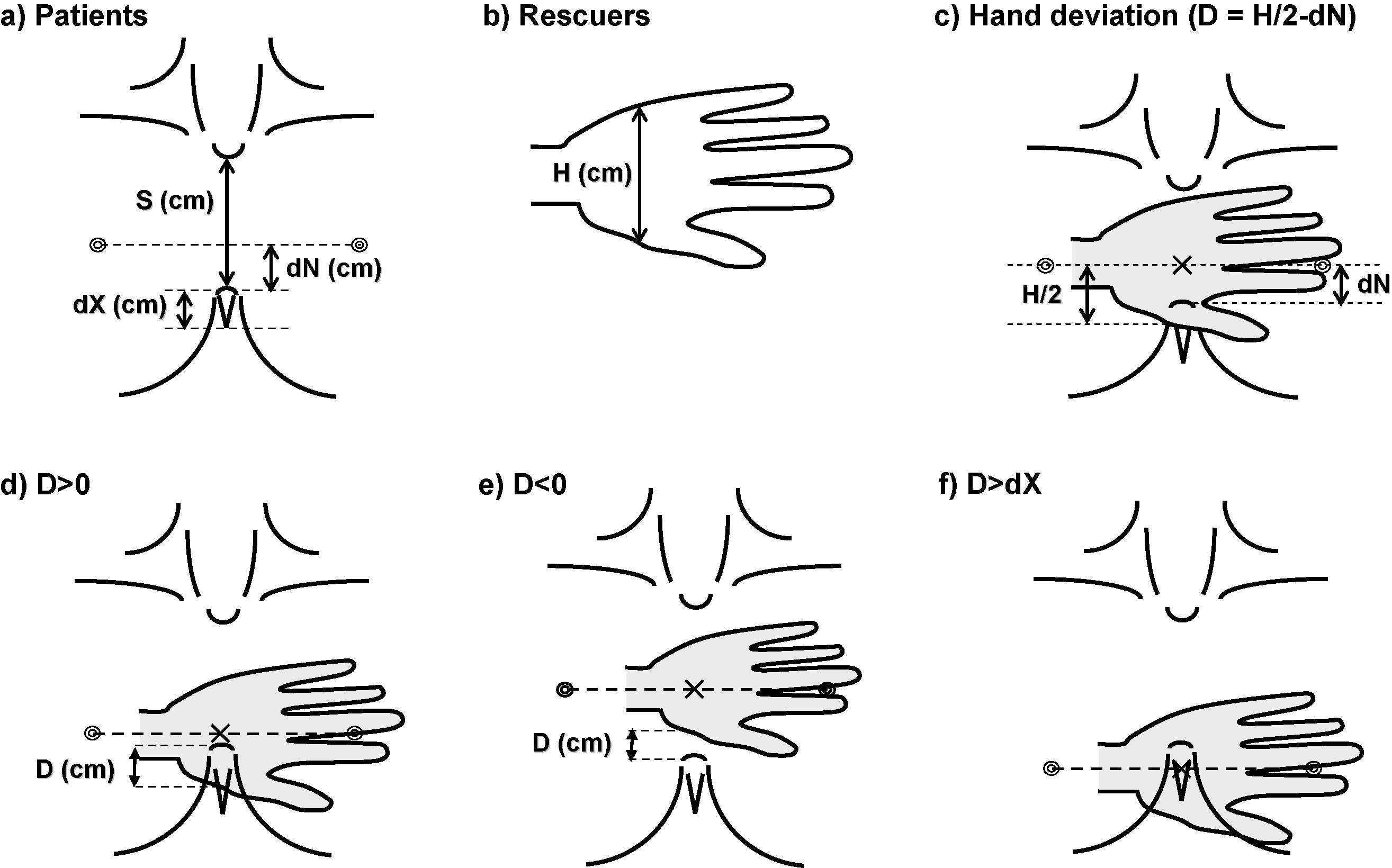 Safety Of The Inter Nipple Line Hand Position Landmark For