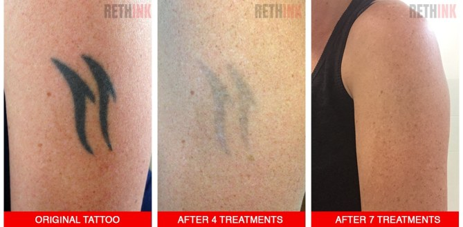 upper arm tattoo removal photo