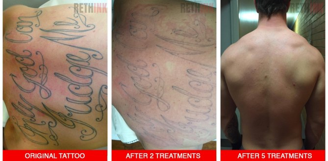 half back tattoo removal