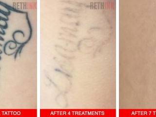 arm tattoo removal