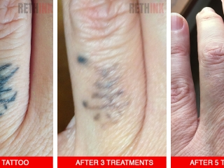 ring finger tattoo removal