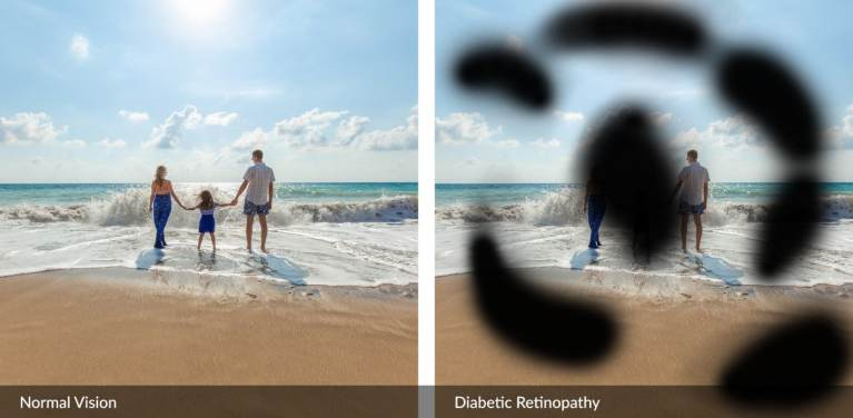 How To Prevent Diabetic Retinopathy?