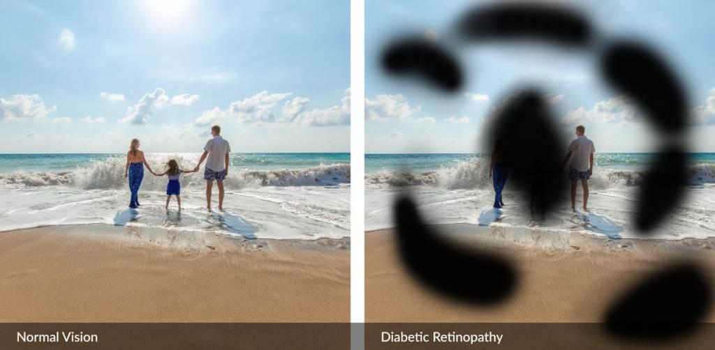 A visual effect of what advanced diabetic retinopathy looks like