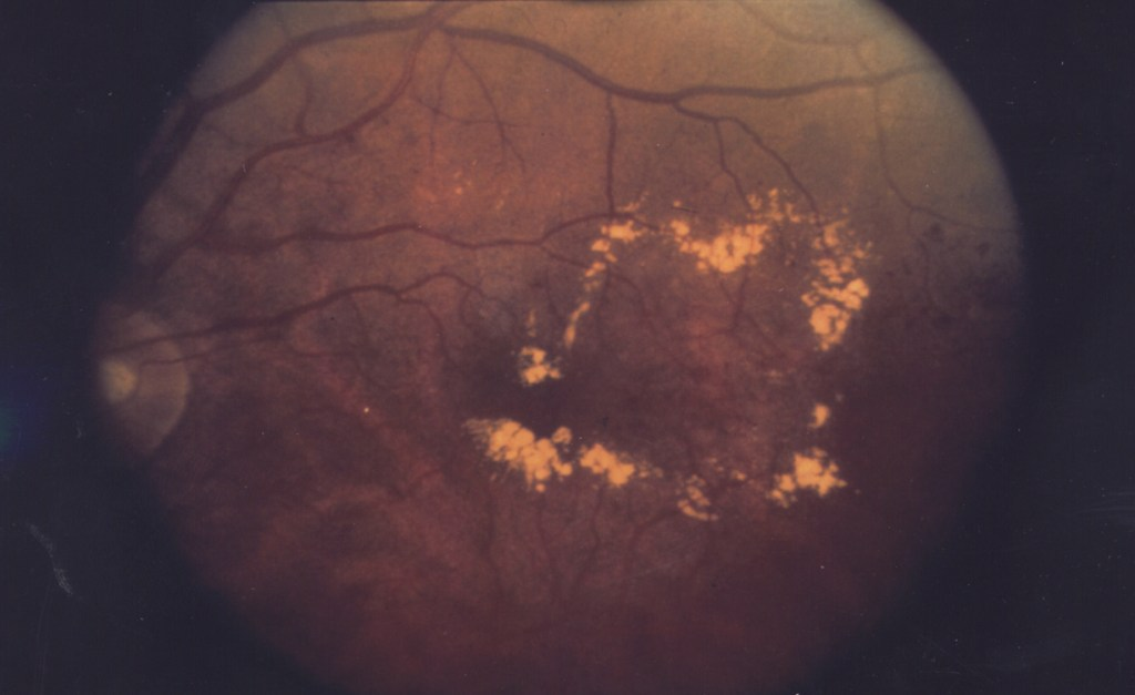 Diabetic macular edema, with hard exudates surrounding the blood vessels.
