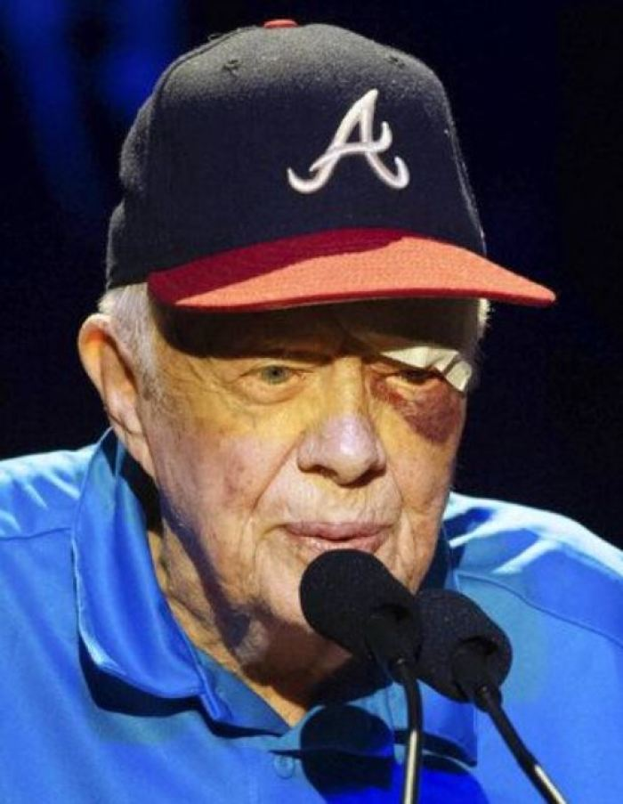 jimmy carter black eye