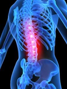 Squelette et mal de dos