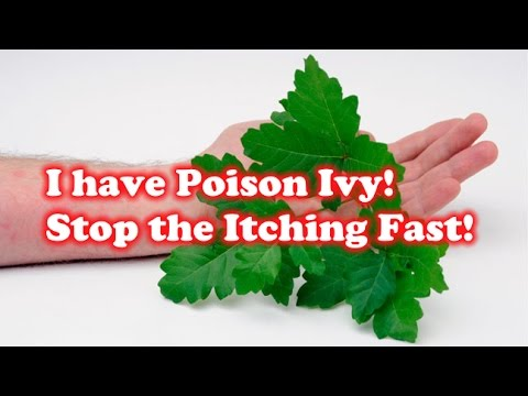 I have Poison Ivy! How to Stop the Itching Fast!