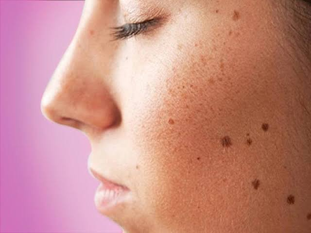 Best dark spots remover for face