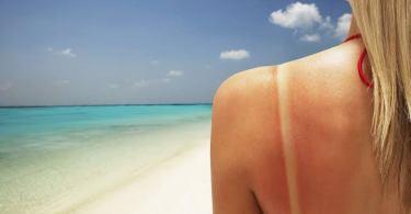 Best lotion for sunburn treatment