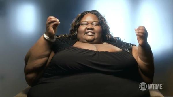 A person with obesity. Image credit laseanrinique.com