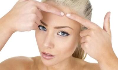 6 motivos para tratar a acne ao primeiro sinal da doença