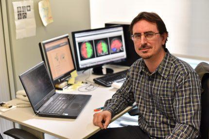 el cerebro años antes de los primeros síntomas delalzhéimer