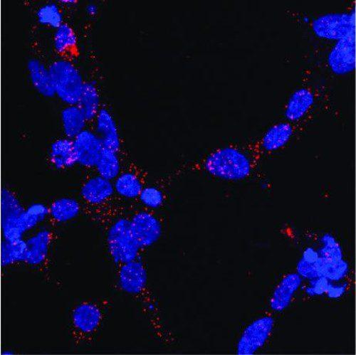 cáncer de próstata estable