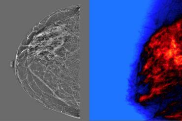 inteligencia artificial y radiólogos precisión en mamografías