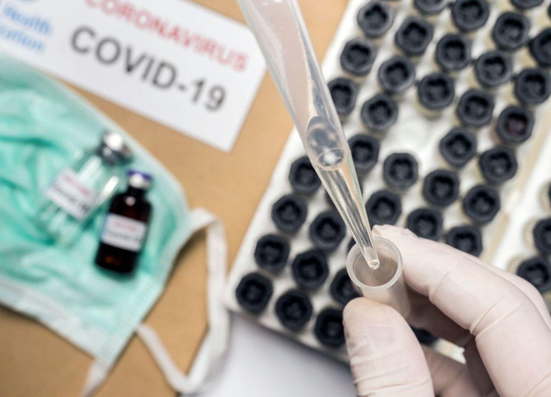 uja ,siete proyectos de investigación del covid-19