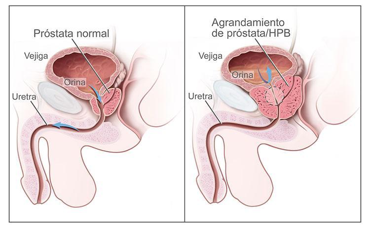 guía de salud básica , precisa y confiable. hoy : próstata