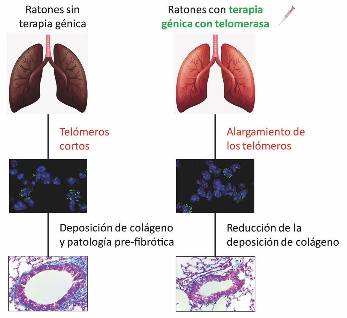 Terapia génica contra la fibrosis pulmonar asociada al envejecimiento