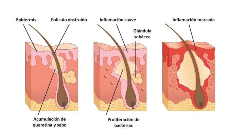 diana para el tratamiento del acné