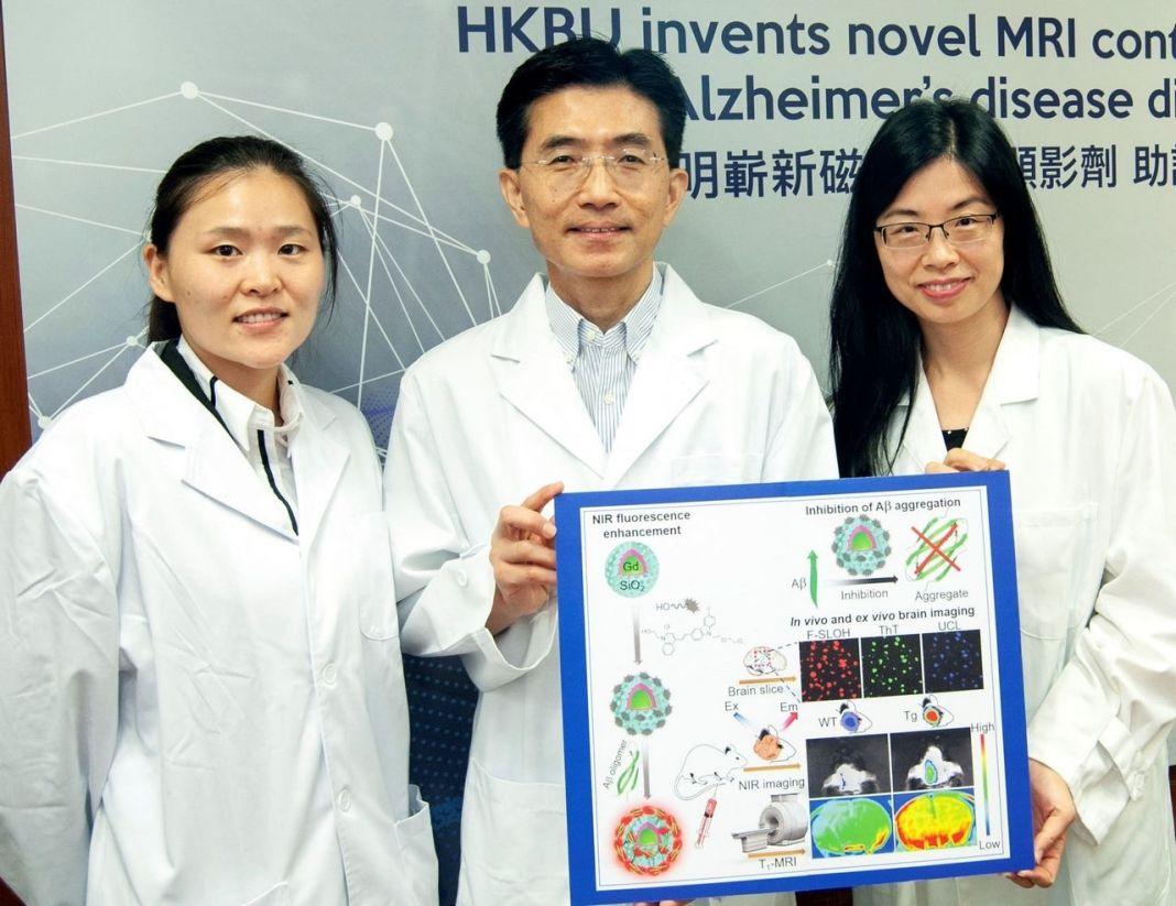 hkbu, resonancia magnética para el diagnóstico de la enfermedad de alzheimer
