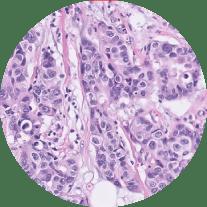 irb , prevención de metástasis y cancer de mama