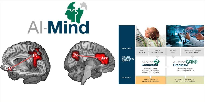ucm inteligencia artificial para la prevención de la demencia