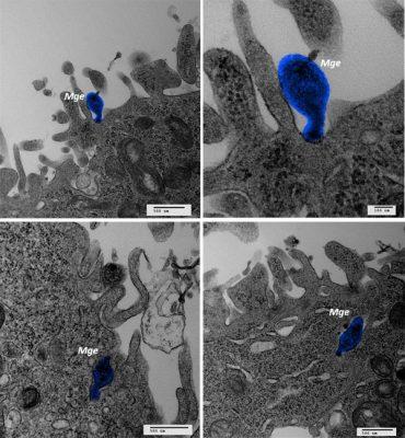 csic, citoadhesinas, unas proteínas que usan las bacterias para adherirse a las células que infectan