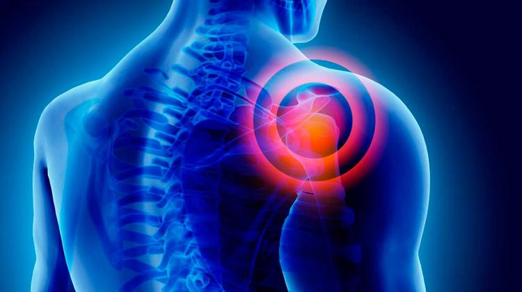 Lesiones musculoesqueleticas en el trabajo