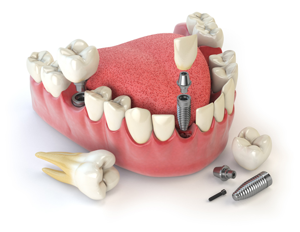 Implant-Supported Restorations