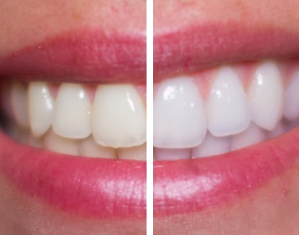 What You Need To Know About DIY Teeth Whitening Trends